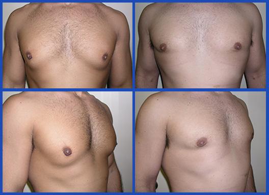 Body Builders' Gynecomastia