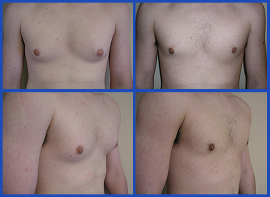 tumescent-liposuction-2
