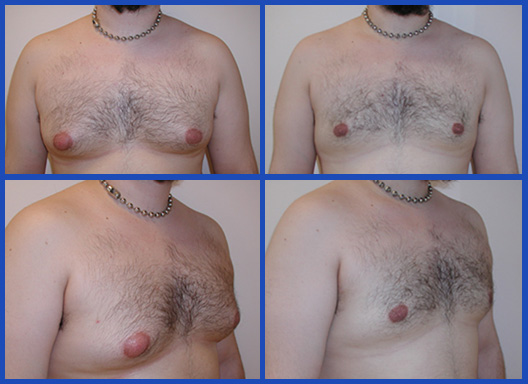 tumescent-liposuction-1