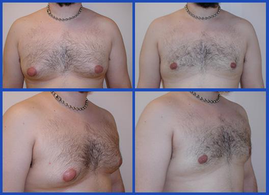 tumescent-liposuction-1
